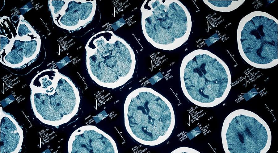 Oklahoma City Brain Injury Lawyers