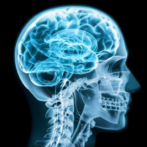 Traumatic Brain Injury – What It Is, Why It Happens
