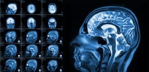 Seniors Are Increasingly Suffering from Traumatic Brain Injuries and Concussions